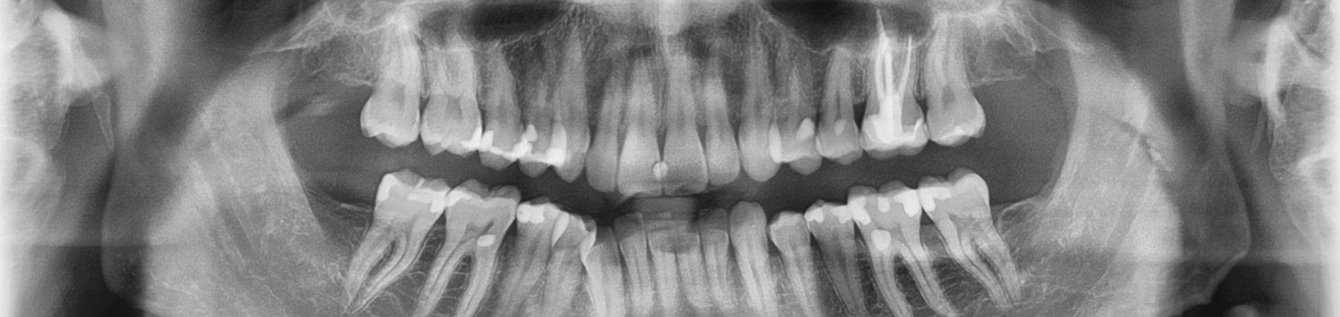 panoramic x-ray radiograph