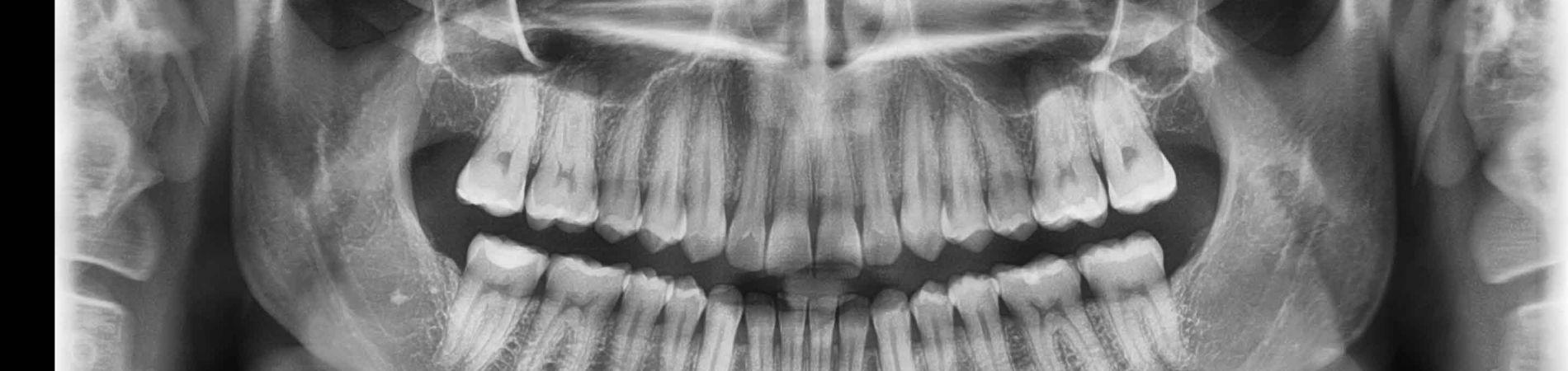 panoramic x-ray, radiograph