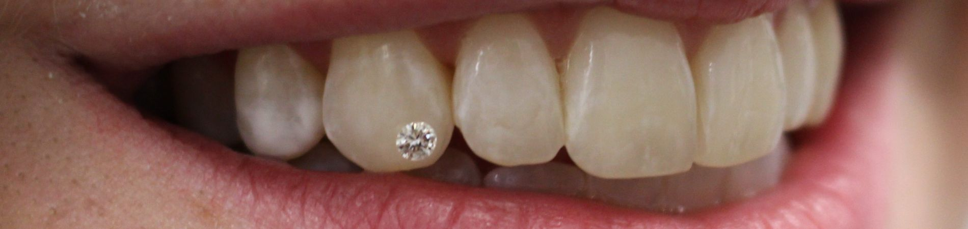 diamond in tooth