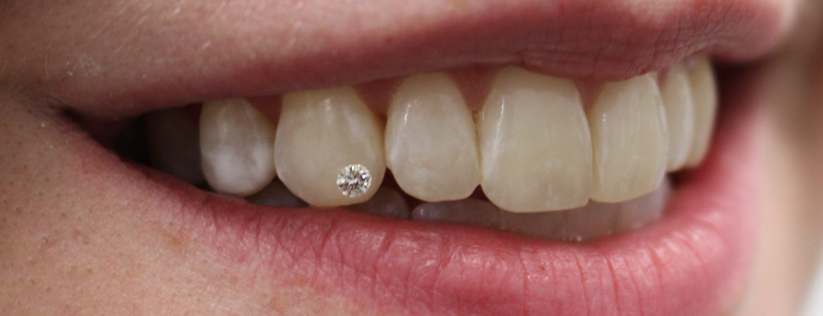 Dental Service panel Image